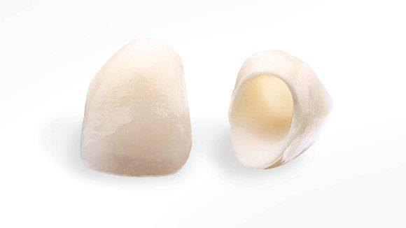 Pavlick Boyle Dentistry - Dental Crowns and Bridges