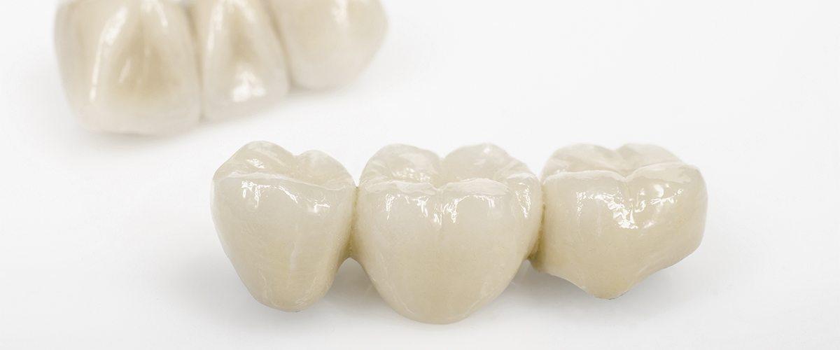 Pavlick Boyle Dentistry - Dental Crown Dental Bridge